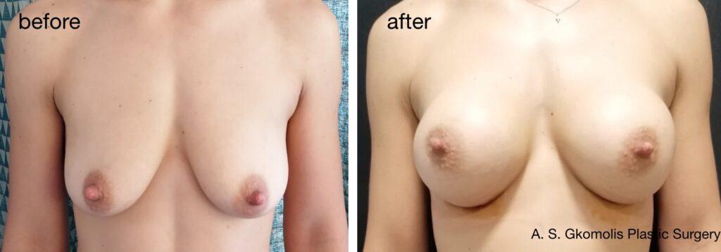 breast6